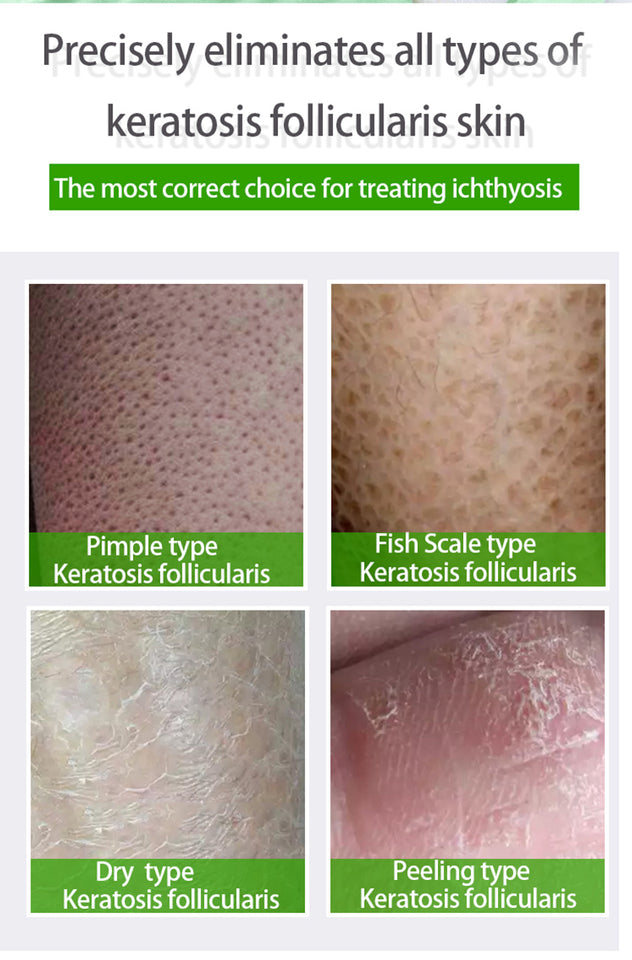 Treatment Body ichthyosis