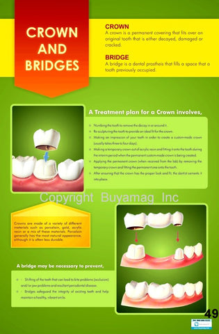 Dental Patient Education Posters