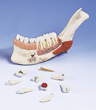 Jaw & Removable Diseased Teeth Models