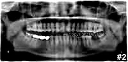Oral X-Ray Images Education Training