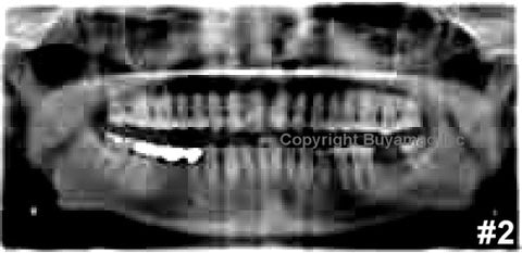 Dental X-Ray Reading Training Images