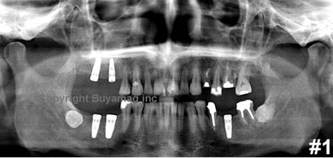 Dental Panoramic X-Ray Reading Images