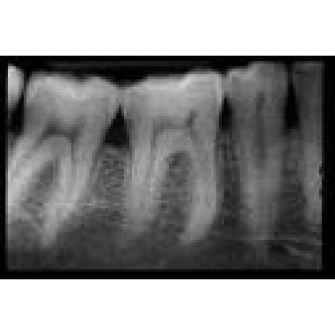 Dental X-Rays Images