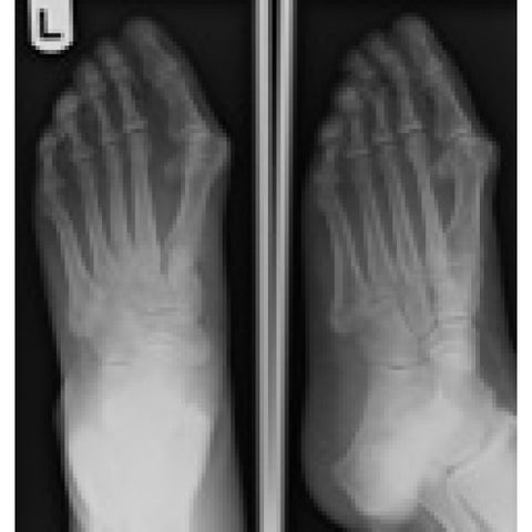Foot Ankle Fibula X-Ray Images