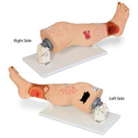 Wound Care Models