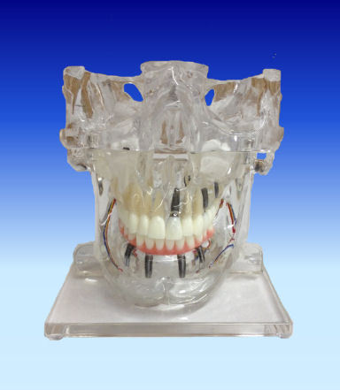 Implants With Sinuses Model