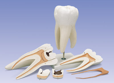 3 Root Molar Caries