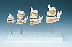 Dental Models Educational