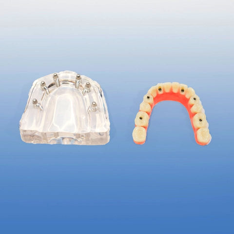six implants overdenture model