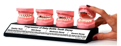 Baby Bottle Tooth Pathology Decay