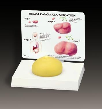 Breast Cancer Model With 3 Lumps Model