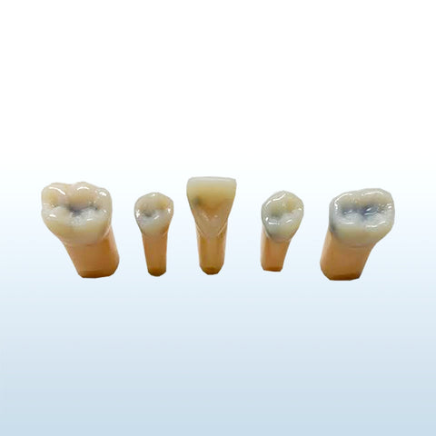 composit teeth caries endodontic models