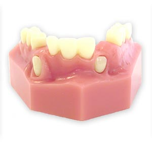 Cuspid Exposure Lateral Incisor Orthodontic Model