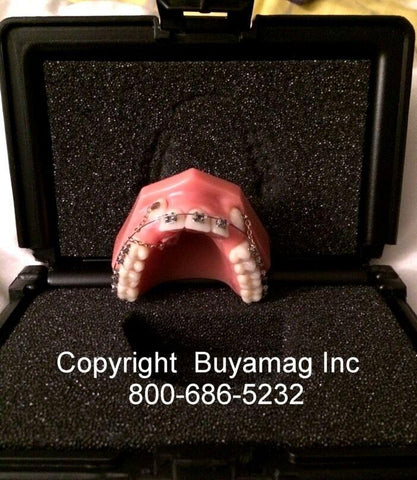Cuspid - Lok Model With Orthodontic Hardware Braces & Wire