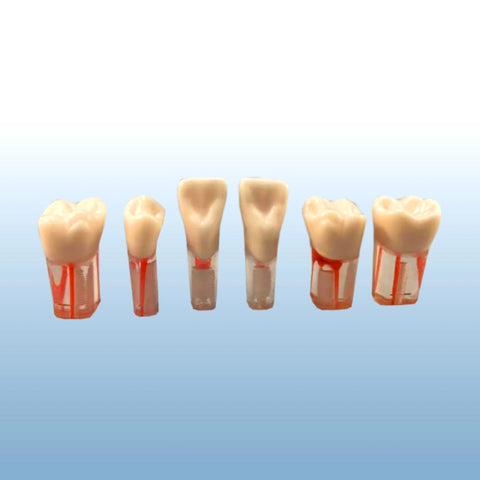 dental endodontic teeth clear root