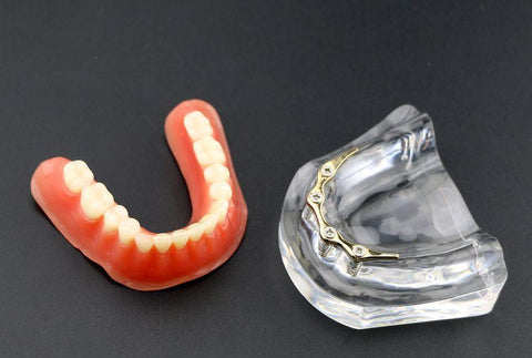 Dental Implant Model with 4 Implants Overdenture & Hader Bar