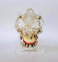 dental-implants-with-sinuses-model