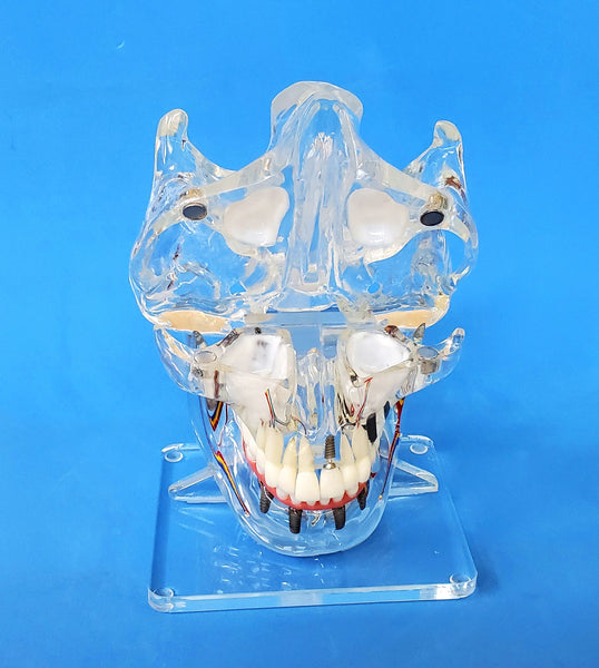dental implants with sinuses model