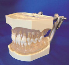 Anatomically Shaped Gingivae Model Mixed Dentition Removable Teeth