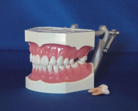 Silicone Gingivae Anatomical 28  Removable Teeth  Model