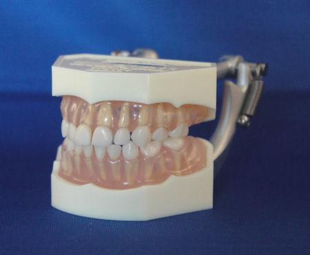 Primary Dentition Jaw Soft Pink Transparent Gingivae Model