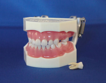 Primary Dentition Soft Pink Silicone Gingivae Anatomical Rooted Removable Teeth