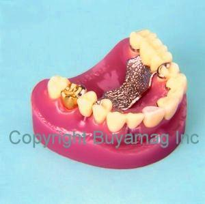 Dental Implants & Crown & Bridge Combination 9 parts Model
