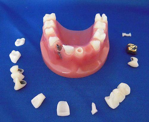 Dental Cosmetic Combo Model: Implant Crown Bridge Inlay Onlay