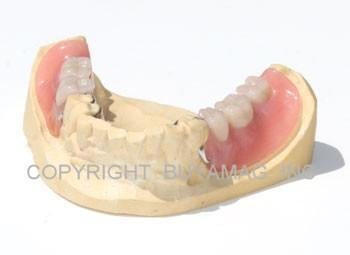 Complete Partial Combination of Chromium Cobalt Frame And Acrylic Dental Model 28 Teeth