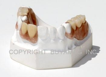 Flex Partial Dental Model 14 Teeth