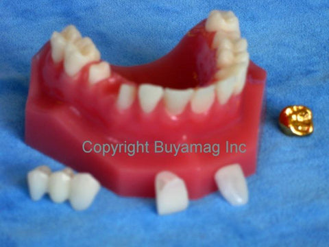 dental bridge veneer gold crown model