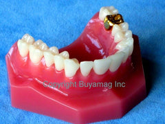 Crown Bridge Gold Crown Veneer Inlay Porcelain Bridge Dental Model