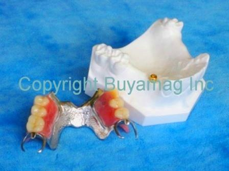Dental Partial Framework Locator Implant Restoration Model