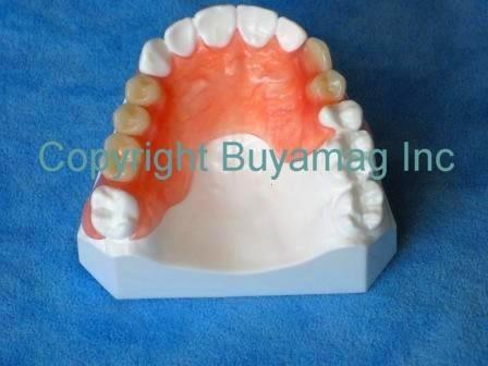 Dental Flexible Partial