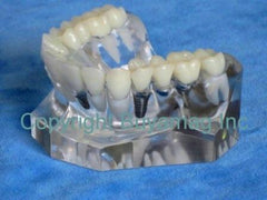 Dental Porcelain Bridge Implant Supported Bridge & Single Tooth Implant
