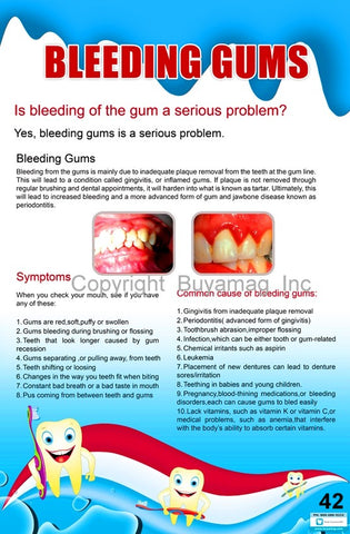 Dental Poster Bleeding Gum Office Patient Education