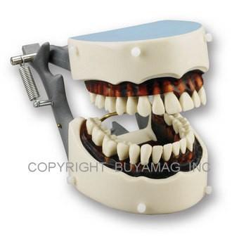 Dental Periodontal Hygiene & Teeth Extraction Model