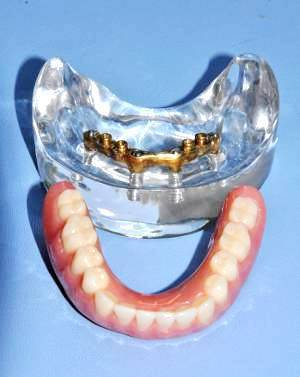 Dental Implant Model 4 Header Bar Posterior