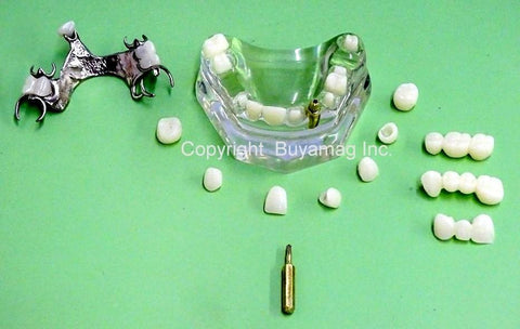 Upper Jaw Dental Work Advanced Restoration Combination 1 Implant 3 Bridges 7 Crowns 1 Partial 1 Abutments  Kit of 14 parts