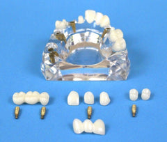 Dental Implant Advanced Combo 5 Implants 2 Bridges 5 Crowns 4 Abutments Kit of 13 pc