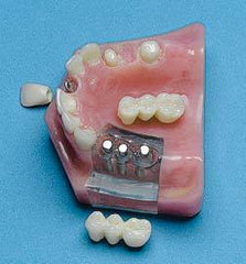Implants Denture Bridge Combo