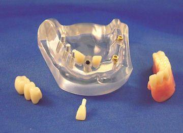 6 Implants Combo Denture 4 Parts Restoration Model