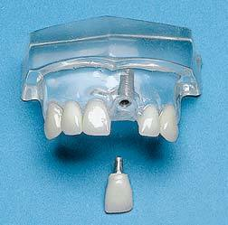 Single Central Tooth Implant 2 Parts