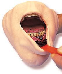 Gross Of Smokeless Tobacco Mouth 3-D Model Educational Simulator