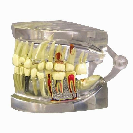 Dental Pathologies Disease Implant Model