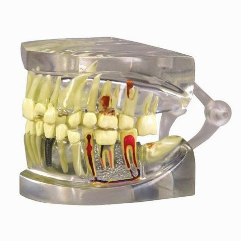Dental Multiple Pathologies Disease Implant Model