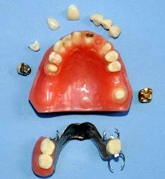 restoration dental model crown