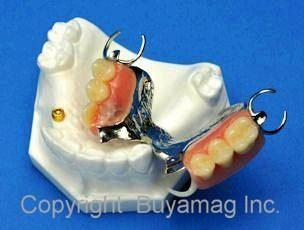 Dental Partial Model With Framework Locator Termoflex Clasp