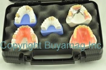 Dental Restoration Kit of 5 - Patients Education Practice Building