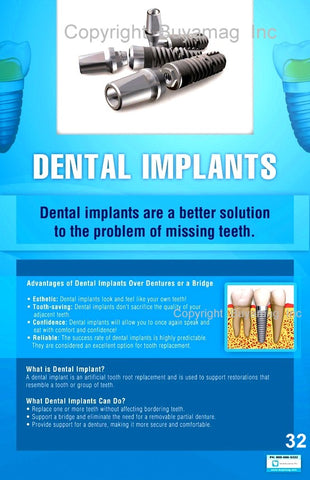 Dental Implants Poster